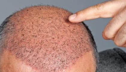 بالفيديو.. داعية تركي يزعم: الرسول «منع عمليات زراعة الشعر»