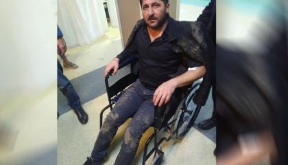 الشرطة التركية تعتدي بالضرب على رئيس مدينة سابق وعائلته