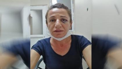 جريدة تركية: هكذا تعذب شرطة أردوغان القيادات النسائية المعارضة