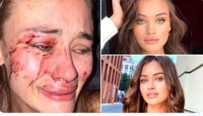 عارضة أزياء أوكرانية تتعرض للضرب على يد أمن  شاطئ «مومو» في تركيا