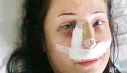 ذهبت لتجميل أنفها في إسطنبول ففقدت ساقيها.. والمستشفى: الدجاج هو السبب