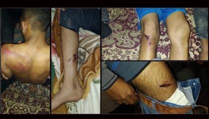اعتقال وتعذيب 5 لاجئين أفغان في تركيا