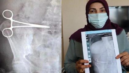 بعد انتهاء عملية لشد البطن.. جراح تركي ينسى مقصًا في أحشاء مريضة
