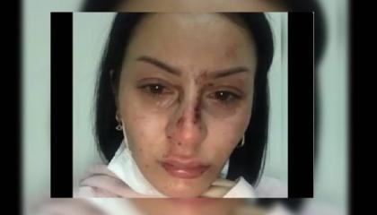 بالفيديو.. 5 من «أشباه الرجال» بالشرطة التركية يسحلون امرأة في الشارع