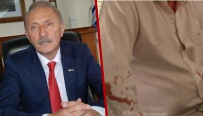 السلطات التركية تفرج عن المتهمين بمهاجمة رئيس بلدية تابع لـ«الشعب الجمهوري»