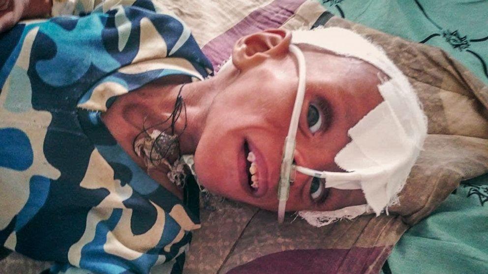 في هذه الصورة، يتم علاج طفل يعاني من سوء التغذية الحاد في وحدة العناية
